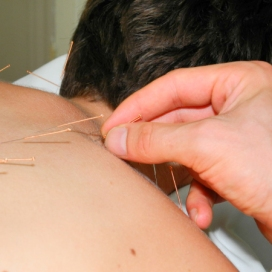 tcm and acupuncture